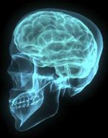 Dahl, L. (2008). Brain [Photograph]. Creative Commons license (CC BY-NC 2.0)